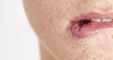 Que faire après un coup de soleil sur les lèvres ?
