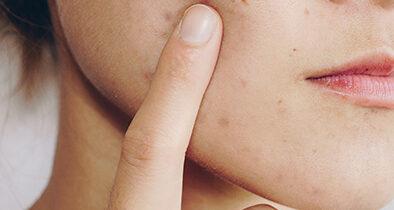Les effets du soleil sur les cicatrices d'acné