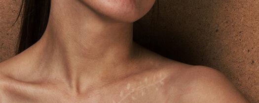 Cicatrice et soleil : quels sont les risques, comment se protéger ?