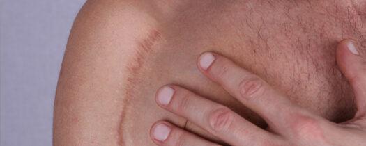 Les cicatrices hypertrophiques