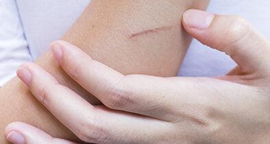 Comment soulager les démangeaisons dues aux cicatrices?