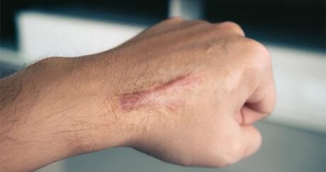 Comment améliorer l'aspect d'une cicatrice chéloïde ?