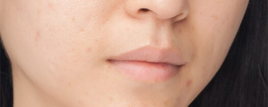 Crème pour les cicatrices d'acné : comment agit-elle ?