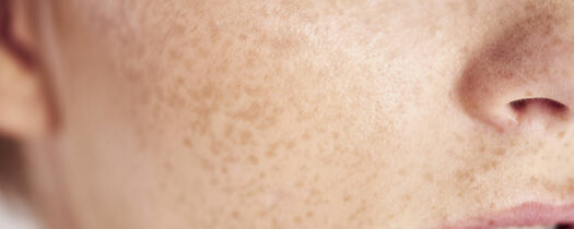 Comment soigner les rougeurs du visage ?