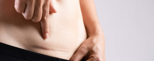Pourquoi est-il important de masser sa cicatrice de césarienne ?