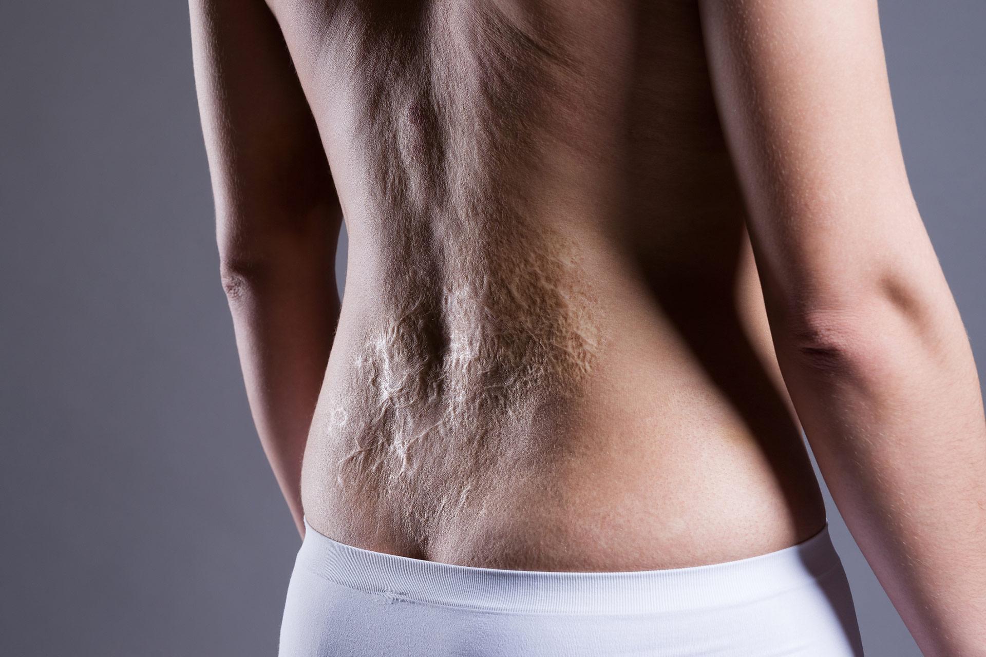 Comment éviter et soigner une cicatrice après une brûlure ?