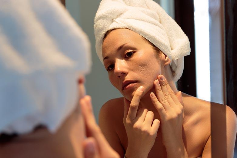 Cicatrices sur le visage: quelles sont les solutions pour les atténuer?