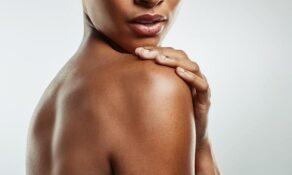 Nos conseils pour atténuer les vergetures sur la peau noire