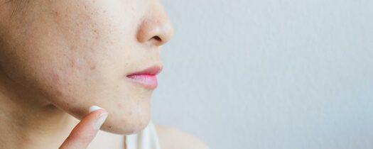 Peau fine et cicatrice : nos conseils de soin
